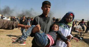 seorang anak palestina luka luka akibat serangan israel